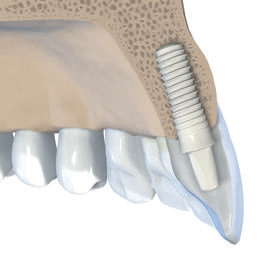 Straumann PURE Ceramic Implantatsystem 3