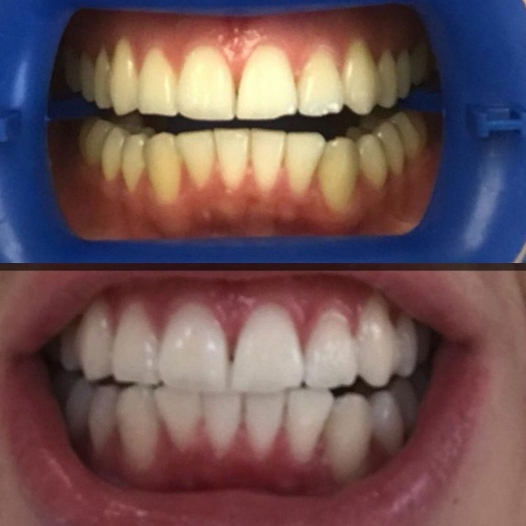 Bleaching - Zahnarzt Dr. Alois Maier